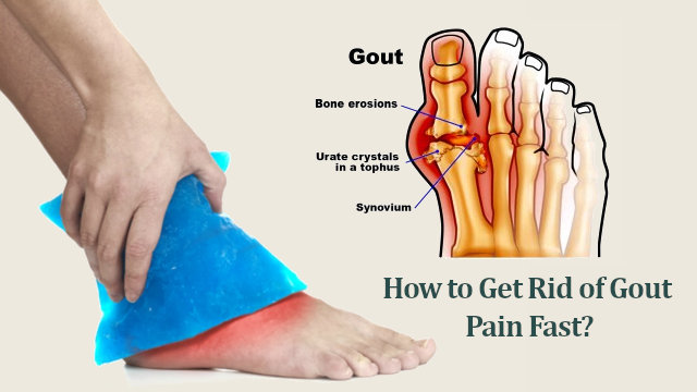 Gout pain relief